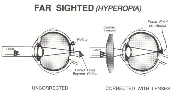 far-sighted-wink-optometry