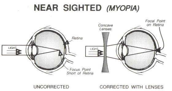 near-sighted-wink-optometry