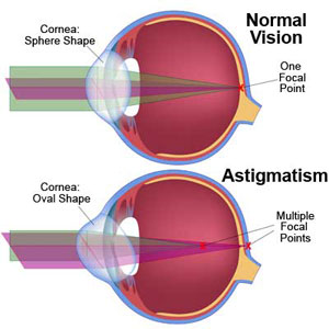 astigmatism-wink-optometry