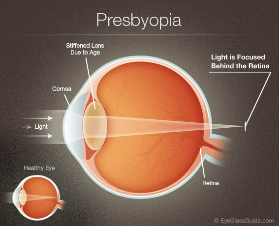 presbyopia-wink-optometry